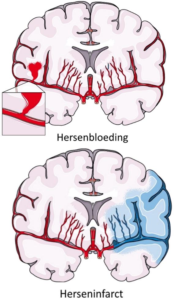 herseninfarct en hersenbloeding